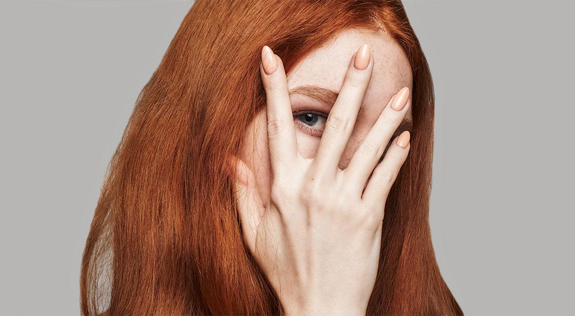 Common Skin Problems # 5: Dullness, Blotch & Pigmentation