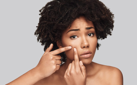 5 skincare mistakes that may worsen your acne